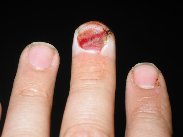 Six days after slamming finger in car door and getting it stitched up.